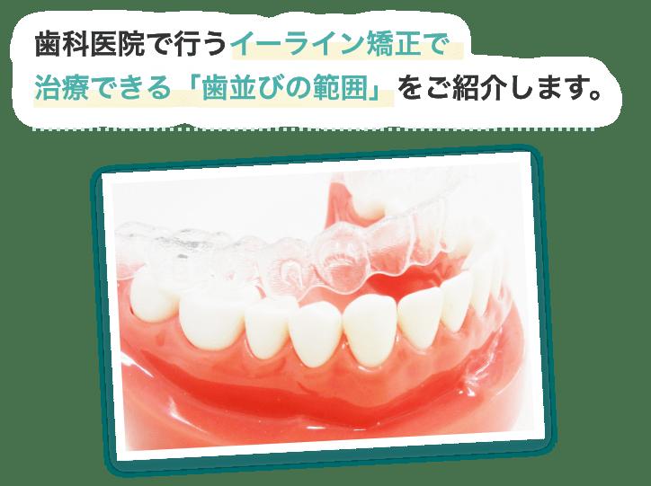 歯科医院で行うイーライン矯正で治療できる「歯並びの範囲」をご紹介します。