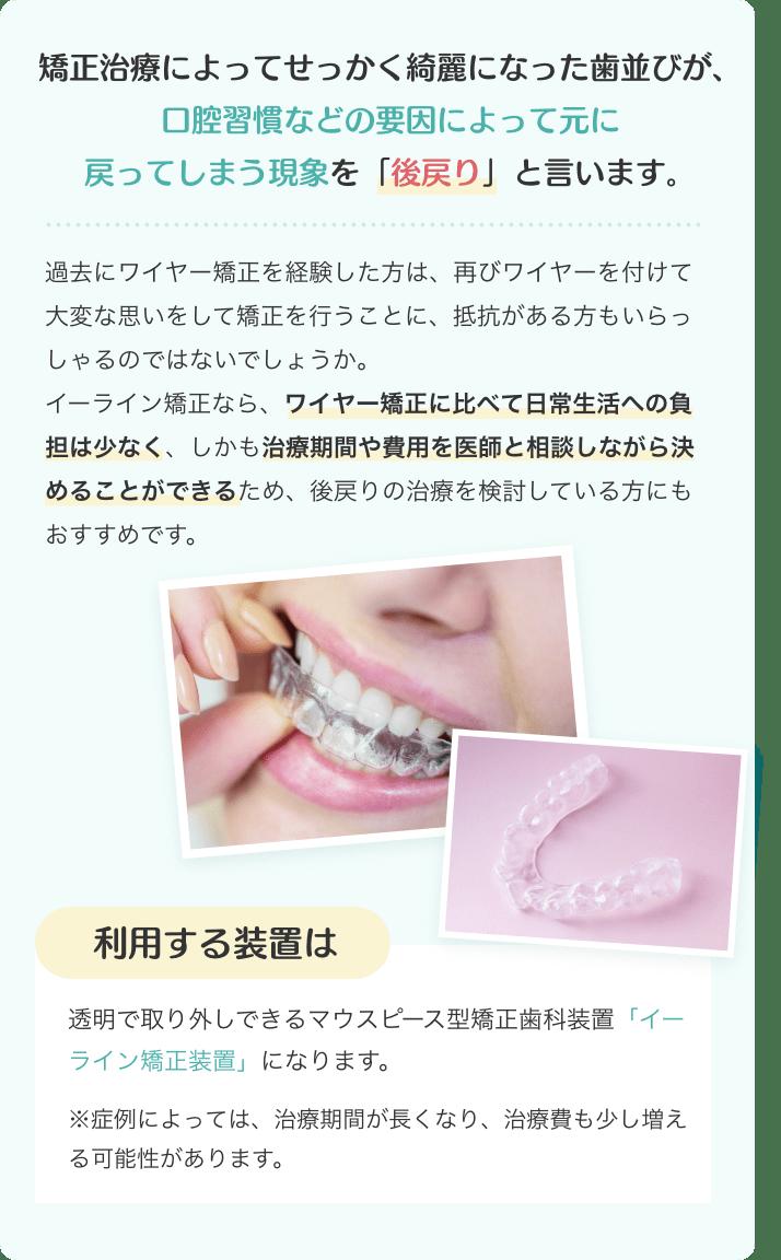 矯正治療によってせっかく綺麗になった歯並びが、 口腔習慣などの要因によって元に戻ってしまう現象を「後戻り」と言います。過去にワイヤー矯正を経験した方は、再びワイヤーを付けて大変な思いをして矯正を行うことに抵抗がある方も少なくないかと思います。 イーライン矯正なら、ワイヤー矯正に比べて日常生活への負担は少なく、 しかも治療期間や費用を医師と相談しながら決めることができるため、 後戻りの治療を検討している方にもおすすめです。